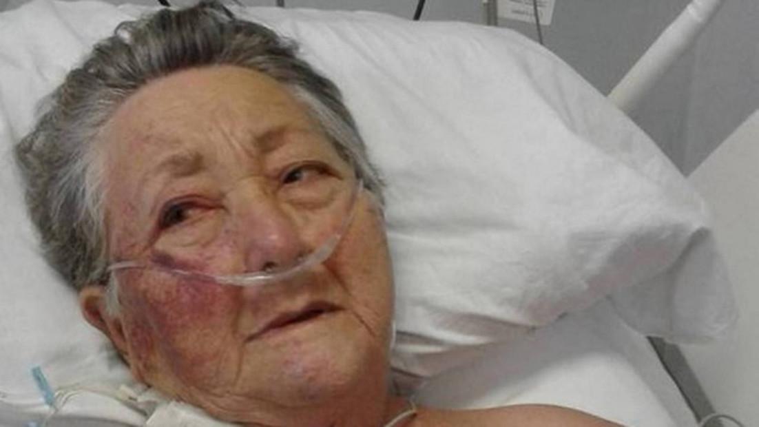 Morre idosa agredida por enfermeiro em UTI de hospital paulista